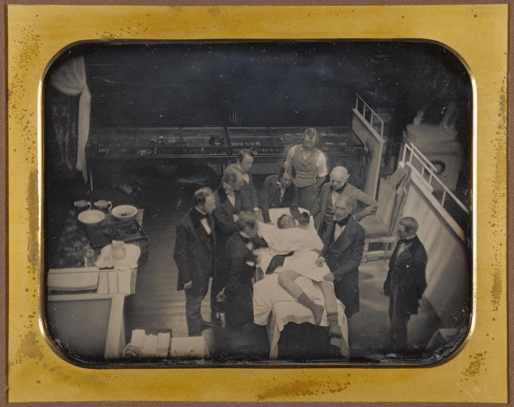 """Рис.15 Southworth & Hawes """"Операция с использованием эфира для наркоза"""", 1847 г."""
