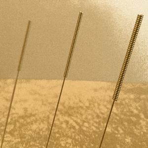 Acupuncture in Bristol