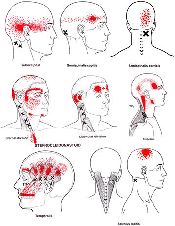 This picture shows some common referral patterns of the neck muscles.  The X's are trigger point locations in the muscles and the red areas show where the referral pain (tension headaches) are felt.