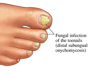"Onychomycosis (also known as ""dermatophytic onychomycosis,"" or ""tinea unguium"") is a fungal infection of the nail. It is the most common disease of the nails and constitutes about half of all nail abnormalities. Instantly effective, laser treatment is the best solution for toenail fungus.  Laser treatment of Onychmycosis is a safe and painless procedure with excellent long-term results."