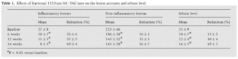 Effect of NdYAG Laser Treatment on Active Acne and Sebum Production (69% Reduction After 24 Weeks)