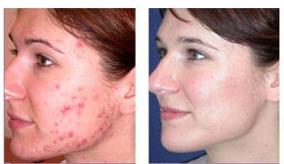 acneTreatment_before_after1.jpg