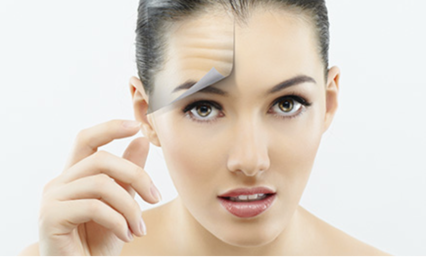 Botox| Filler - Neuromodulators - Juvederm - Radiesse - Belotero