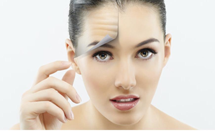 Botox| Filler - Neuromodulators - Juvederm - Radiesse - Belotero