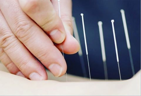 MEDICAL ACCUPUNCTURE.  Also known as Dry Needling is a therapy used to treat muscular tension and pain, trigger point spasms, and myofascial pain. It also has great results on nerve irritation, ligament and tendon strain and herniated discs. Medical accupuncture is available at #thecobhamclinic with our practitioners Rachael and Emma #medicalaccupuncture #dryneedling #musclepain #triggerpoints #nerveirritation