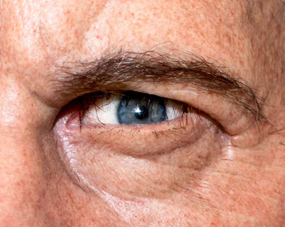 053 quints eye.jpg