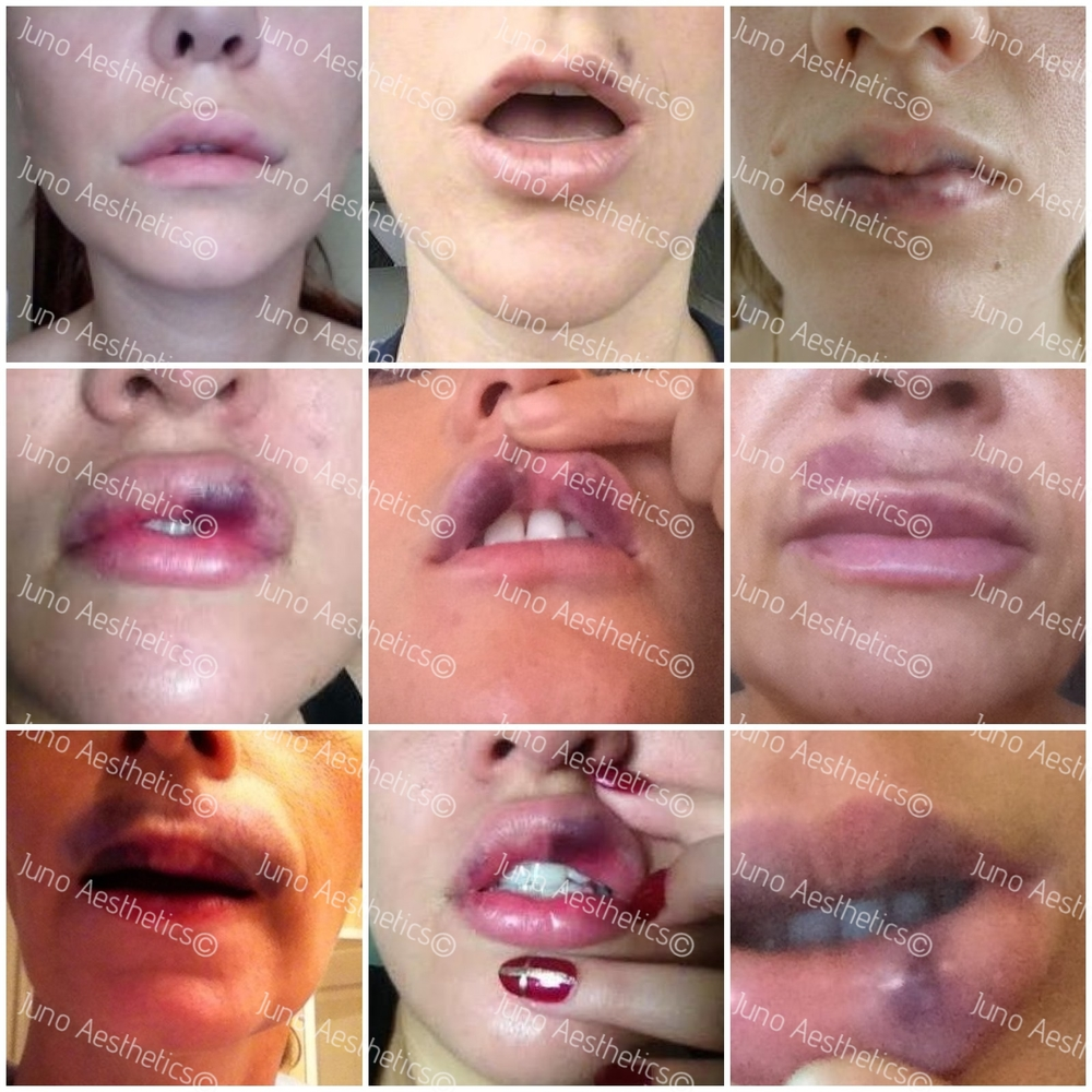 Anything facial filler complicatins juvederm ASSES need