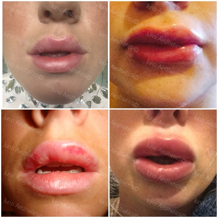 Swelling is unsightly but it is not a reflection of the end result and often resolves in 24-48 hours. Examples of swelling are: