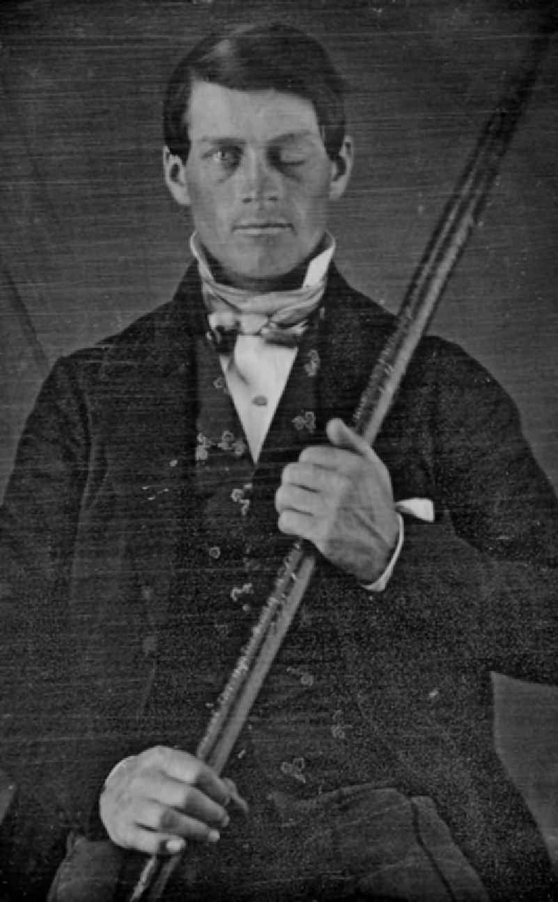 Phineas Gage with his iron rod.