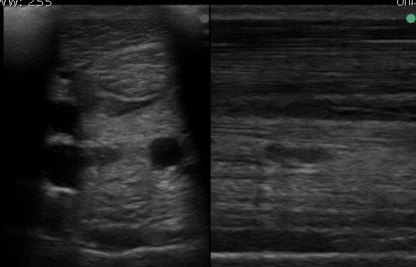 Ultrasound of a horse's tendons