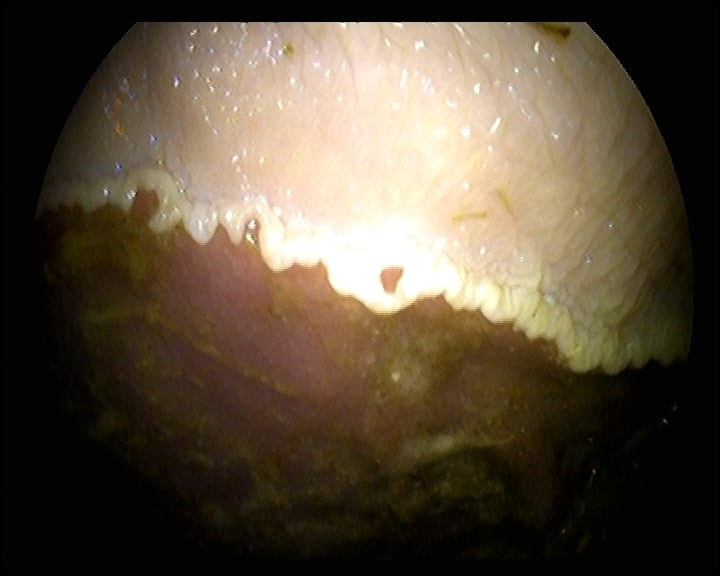 Gastric Ulcer in the horse