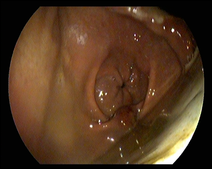 An example of EGGD with multiple distinct superficial erosions of the pyloric region of the stomach and multifocal, diffuse discoloration of the antrum of the stomach.