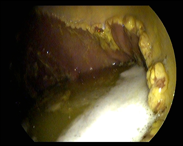 Equine Squamous Gastric Disease -ulcerations appear as dark red islands along the margo plicatus. The squamous epithelium also has a yellowish color due to chronic irritation and fibrin production within the stomach.