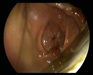Equine Glandular Gastric Disease - a large ulcerated area of the glandular mucosa at the level of the pyloris.