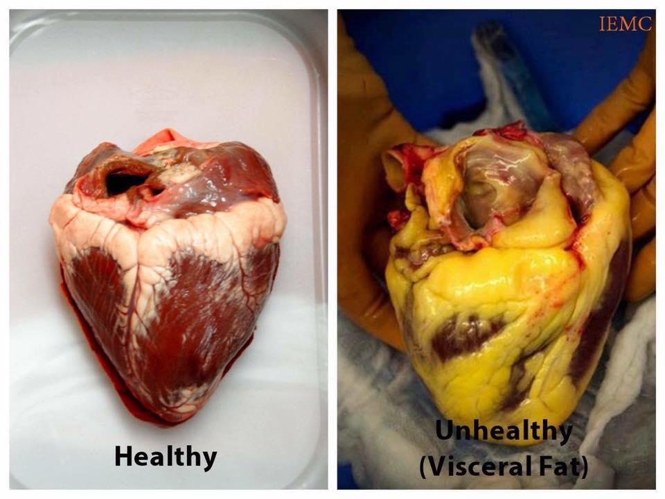unhealthy heart.jpg