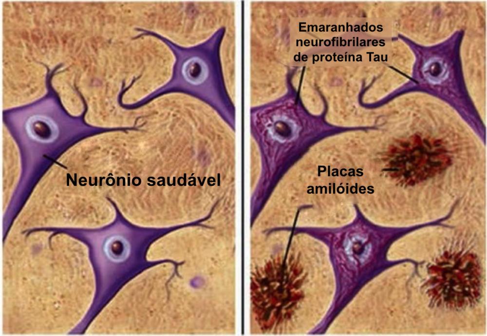 Alzheimer.png