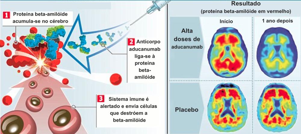 beta-amilóide.png