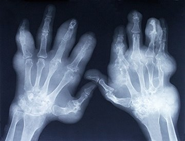 artrite-RX-mãos.jpg