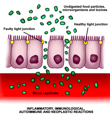 Increased_intestinal_permeability.png