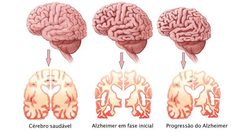 Alzheimers-Disease.jpg