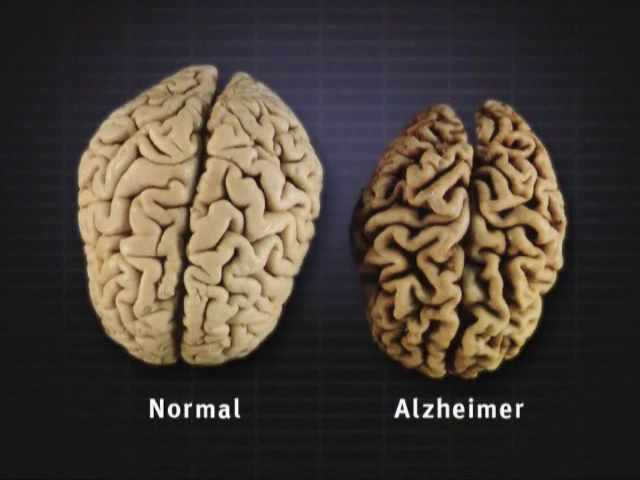 dementia-brain-changes-thumb.png