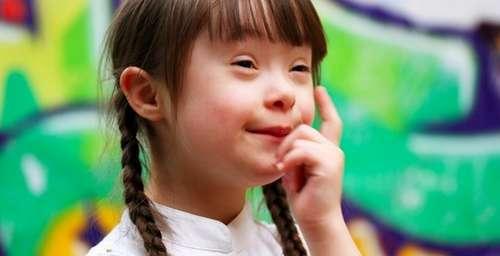 down-syndrome-girl.jpg