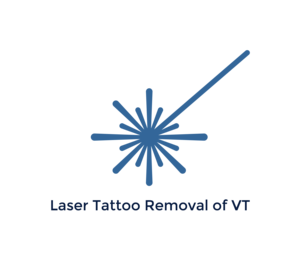 Laser Tattoo Removal of Vermont
