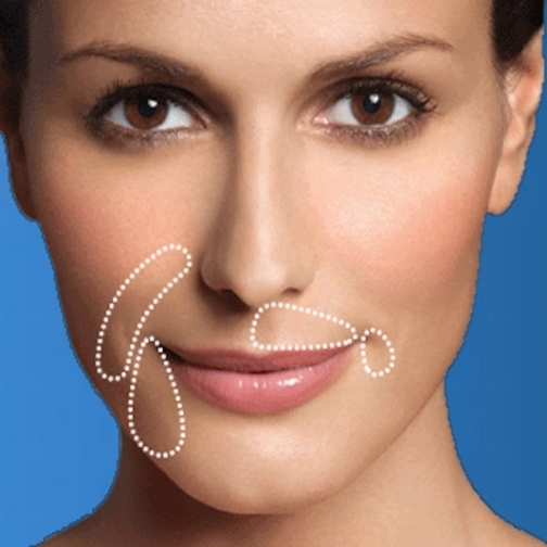 restylane_injections-1.jpg