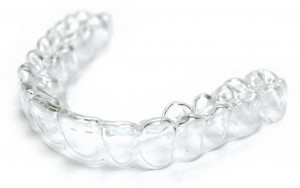 Essix Clear retainer