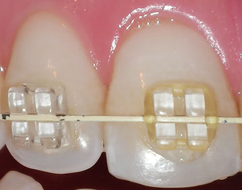 Staining clear braces
