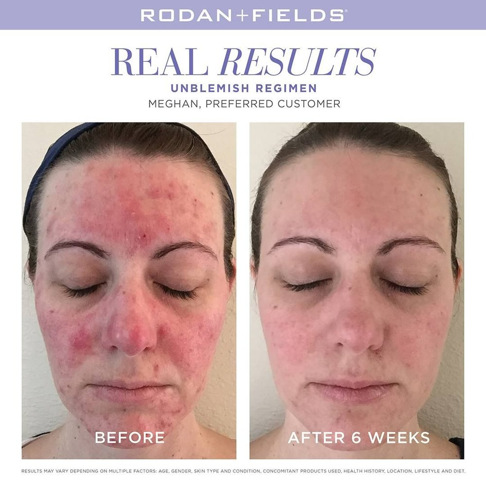 Photo of a Rodan + Fields Preferred Customer
