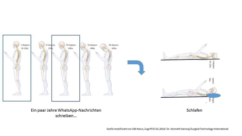 Smartphone anschauen vs Schlafen. Die Darstellung/Analogie ist natürlich stark vereinfacht, da die Schwerkraft in beiden Fällen nach unten wirkt, und damit die Lastprofile und Krümmungen im Liegen anders sind als im Stehen. Trotzdem, in einem reduzierten biomechanischen Modell drückt das Kissen den Kopf-Nacken-Schulter/BWS-Komplex in ähnlicher Weise nach vorne wie die Handy-Interaktion. Was ich damit auch sagen will: Während wir uns um ersteres n ziemlichen Kopf machen, nehmen wir letzteres jede Nacht ohne Weiteres in Kauf. Kissen, anyone?