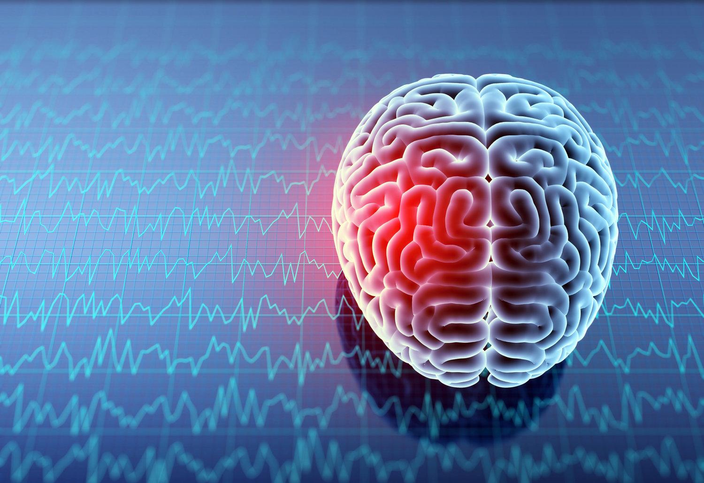 Speech Difficulties After a Traumatic Brain Injury