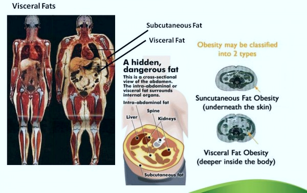 visceral-fat-graphic.jpg
