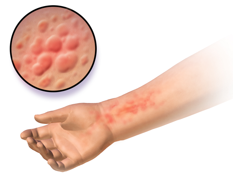 Food sensitivity testing can help you avoid rashes and other symptoms.