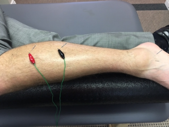 anklespraindryneedletherapy