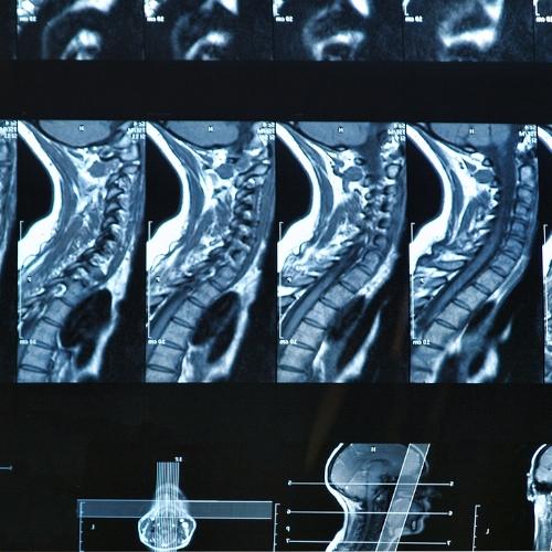 neckpainreliefutahchiropractor.jpg