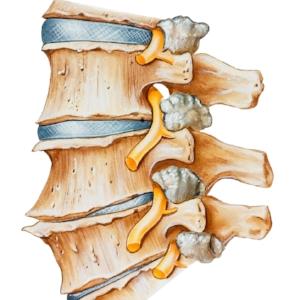 OsteoarthritisReliefUtahSportsChiropractor.jpg