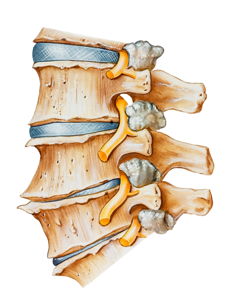 Sciatica_Pain_Relief_Holladay_Utah_Sports_Chiropractor.jpg