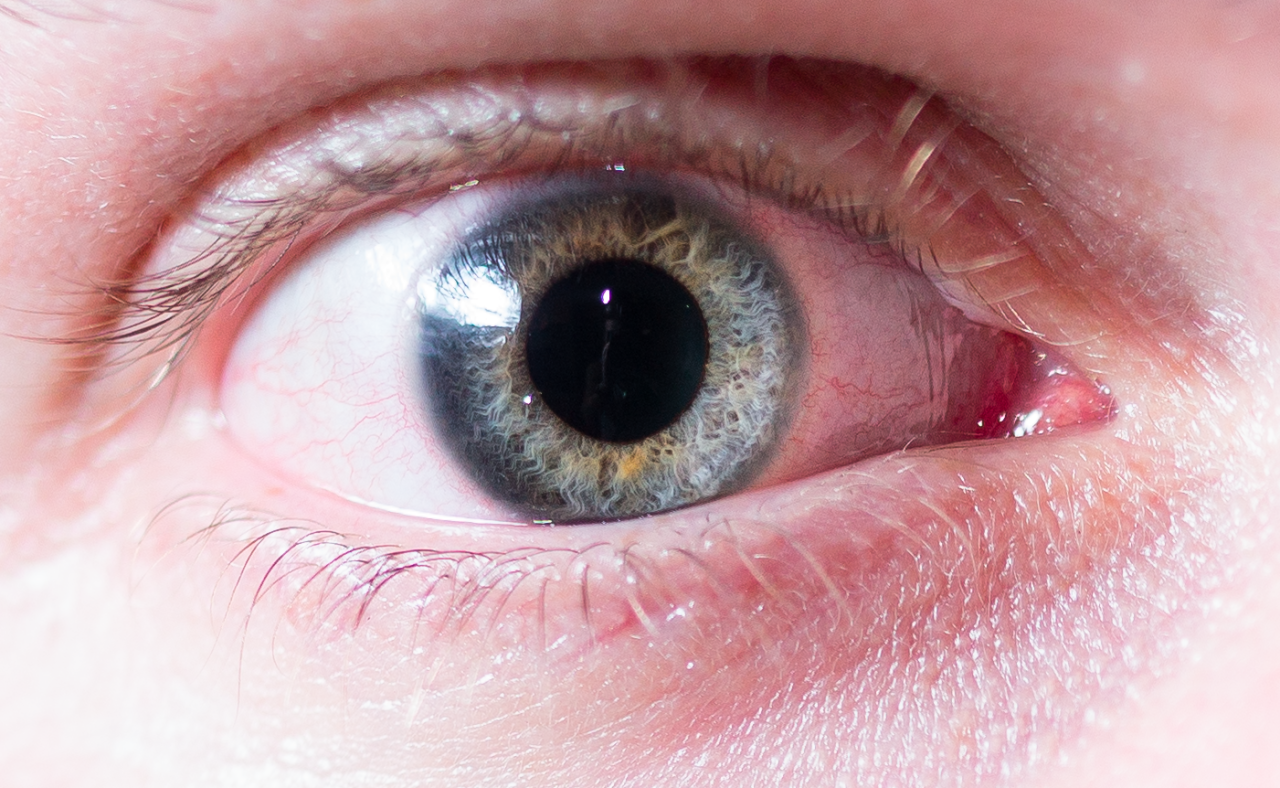 Tim's eye, 100% crop.