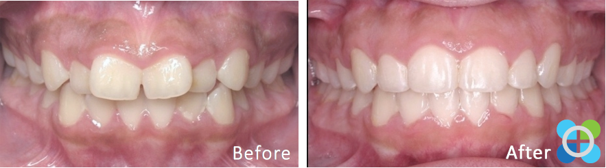 6-orthodontique-before-after-braces.png