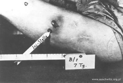 Eksperymenty pseudomedyczne (źródło:  http://furious.pinger.pl/a/2009/10/27 )