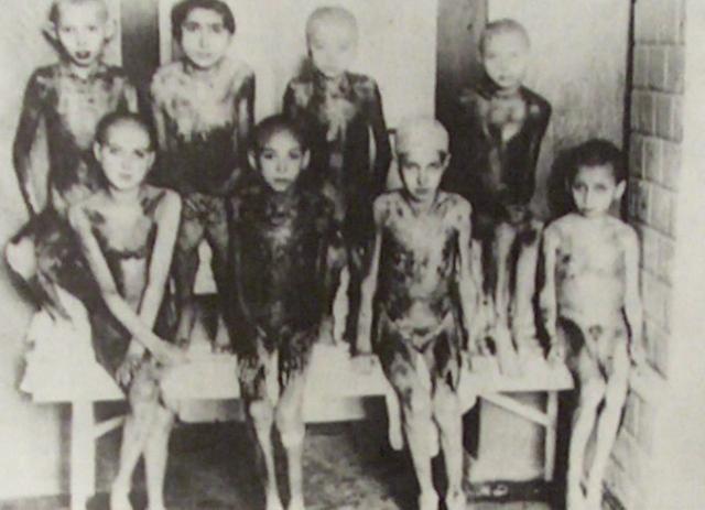 Dzieci, które były przedmiotem eksperymentów pseudomedycznych Horsta Schumanna w Auschwitz. Zaczernienia części ich ciał to prawdopodobnie efekt poparzenia wskutek ekspozycji na wysokie dawki promieniowania, ale szczegóły eksperymentów przeprowadzanych na tych konkretnych dzieciach nie są znane (źródło:   https://santitafarella.wordpress.com/2009/02/10/bearing-witness-to-the-holocaust-children-at-auschwitz/ )