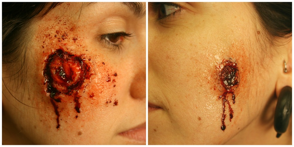 Bullet entry and exit wound