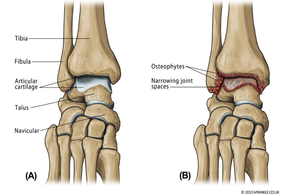 condition of ankle arthritis