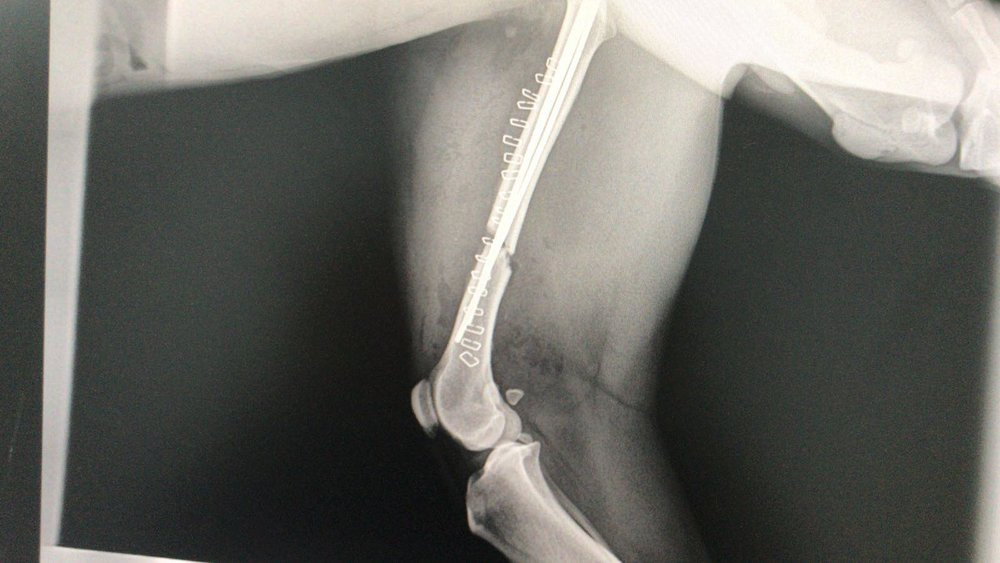 Post surgery, break now pinned