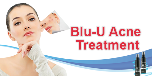 Blu-U Acne Treatment Banner.png