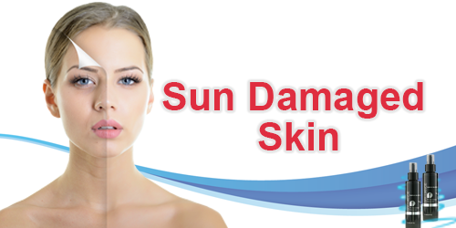 Sun Damaged Skin Banner.png