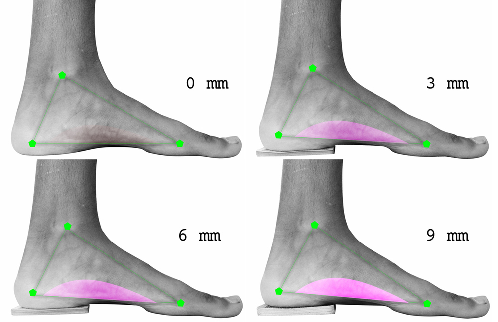 El pie como soporte se carga proporcionalmente en función del arco. El arco a la vez reacciona en función de la carga.Cuando la carga es homogénea sobre el arco la función del arco también lo es.
