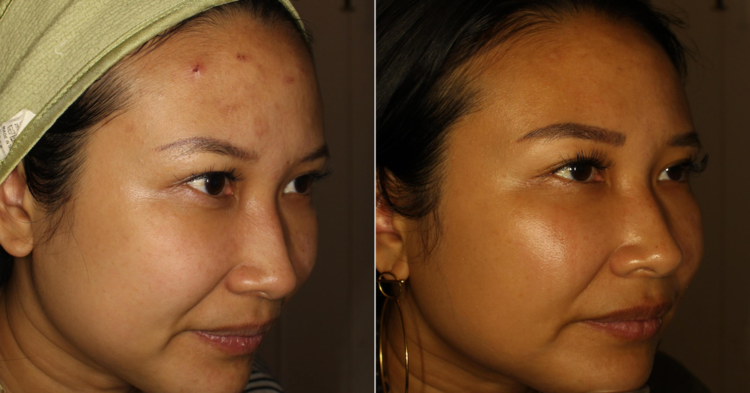 BeforeAfterAcne.png
